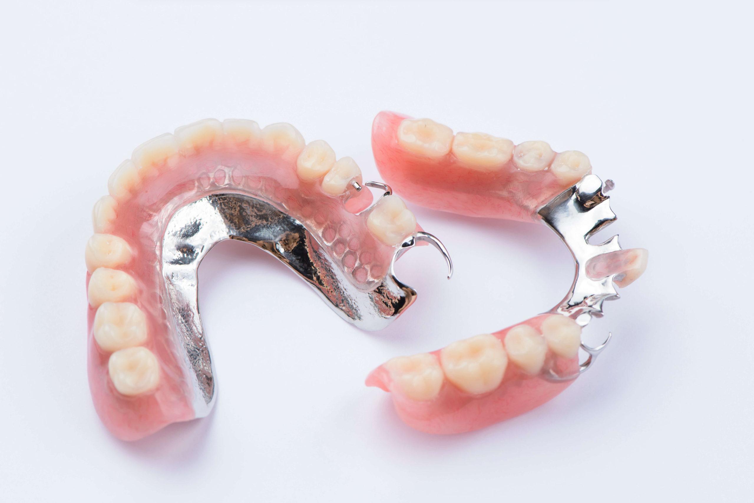 Prothèse dentaire : quels sont les différents types qui existent ?